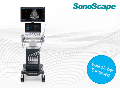 SonoScape P9